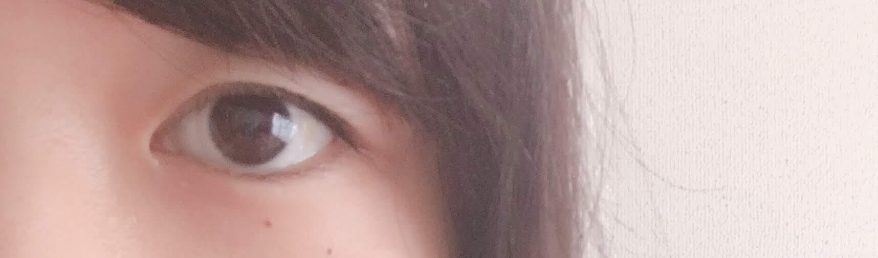 た 二 重 なっ 片目 に だけ